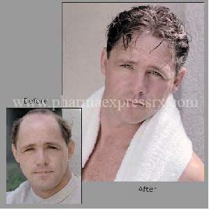 stop-hair-loss1